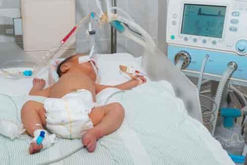 Geburtsschäden und Geburtsschadensrecht