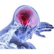 Schlaganfall & Behandlungsfehler